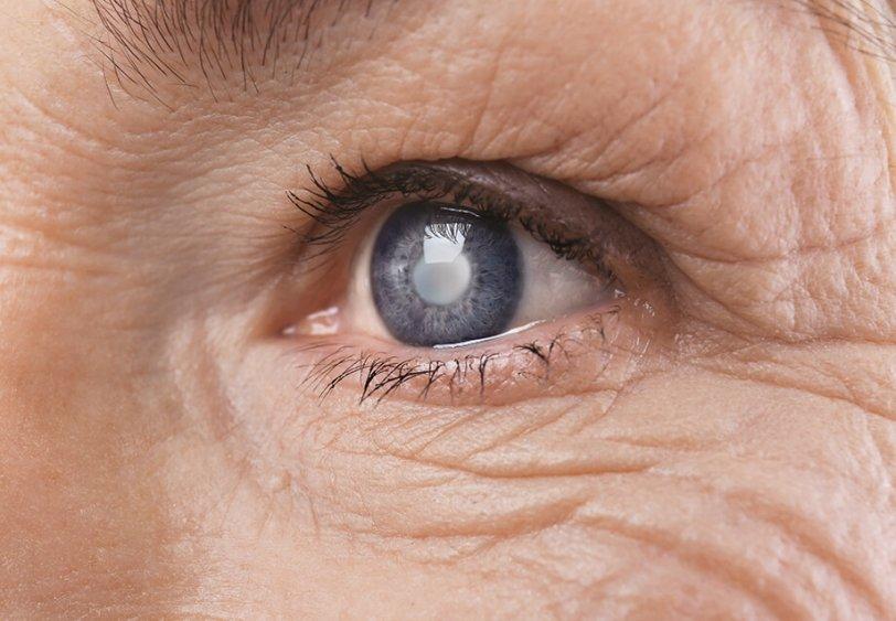 vnetje vek - blefaritis
