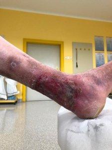 Aktivna golenja razjeda z rjavkastim obarvanjem kože v okolici in mrežastimi venami pod gležnjem