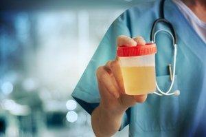 Barva urina