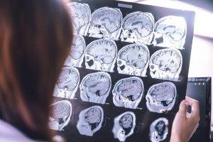 možganska kap rehabilitacija