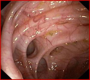Endoskopska slika divertiklov - divertikli