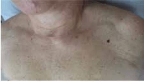 temne lise ali bulice na koži (znamenja) melanom
