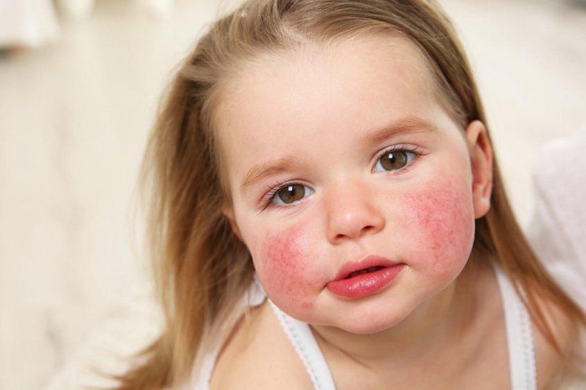 pomoč obolelim z atopijskim dermatitisom