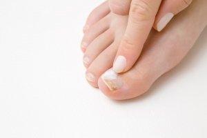 zdravljenje glivičnih okužb z zdravilnim lakom