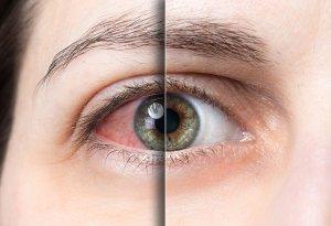 sindrom suhega očesa