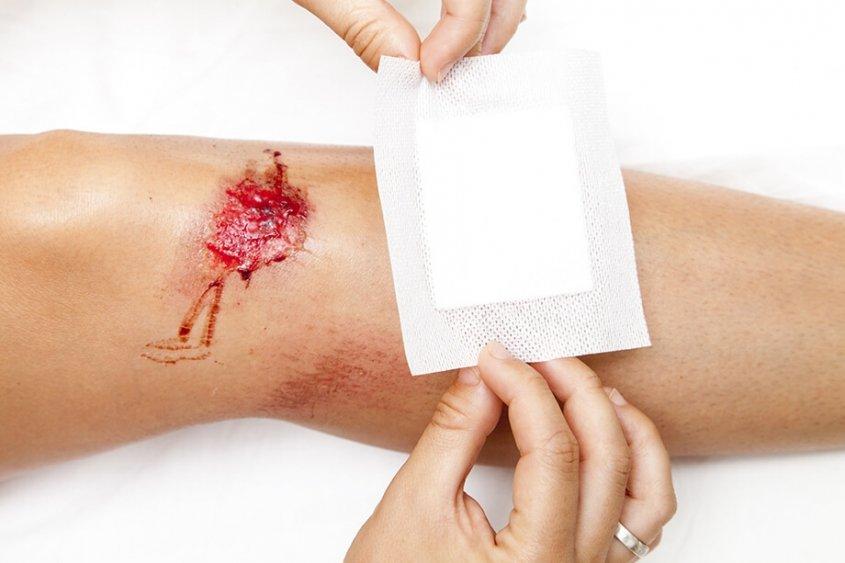 celjenje ran
