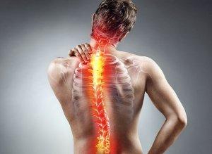 kriva hrbtenica - skolioza
